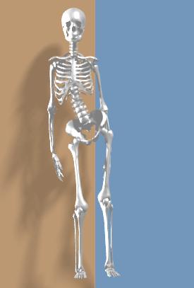 右側大腿直筋の短縮により右傾斜.png