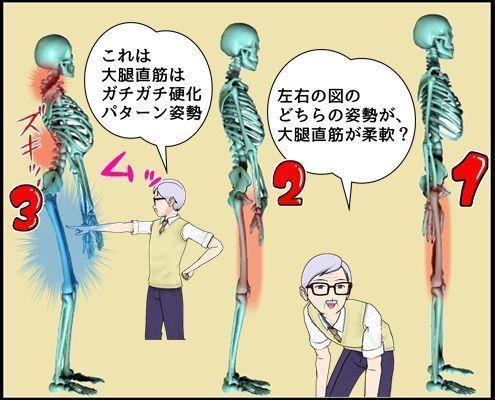 大腿直筋で見てみる.jpg