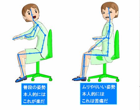 機能的な姿勢がゆがんでいるとき.png