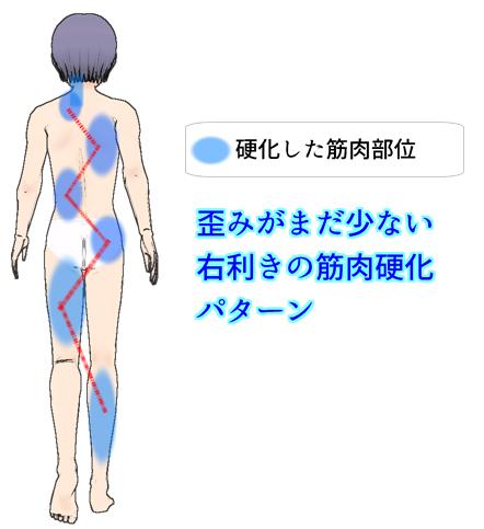 歪みがまだ少ない右利きの背面の筋肉硬直パターン.png