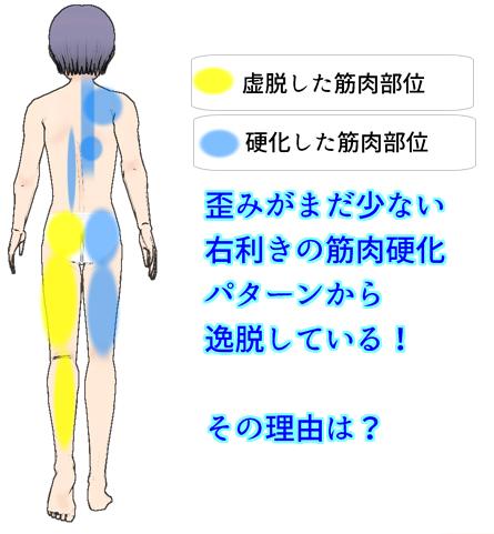 歪みがまだ少ない右利きの背面の筋肉硬直パターンを逸脱.png