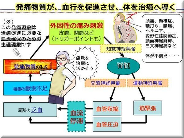 発痛物質が、血行を促進させ、体を治癒へ導く.jpg