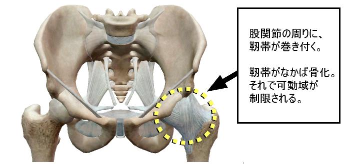 股関節の可動性異常、その1.png
