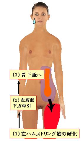胃下垂とハムストリング筋の硬化の関係.png