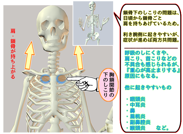 胸鎖関節下のしこり.png