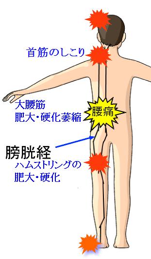 膀胱経並びの問題発生.png