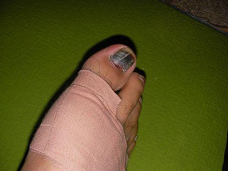 足部のサポート.jpg