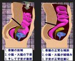 骨盤の前傾と正常.jpg