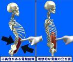 骨盤前傾による内臓ダメージ.jpg