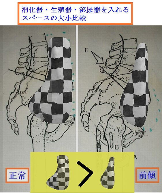 骨盤前傾の腹腔内スペース狭小化.jpg
