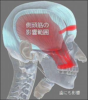 側頭筋の影響範囲は歯にもおよびます.jpg