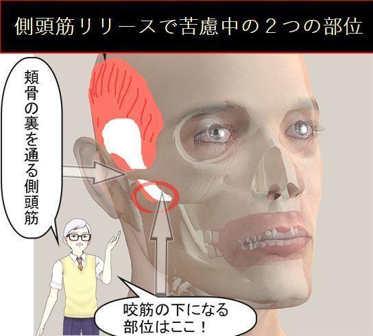 側頭筋リリースで苦慮している部位2つ.jpg