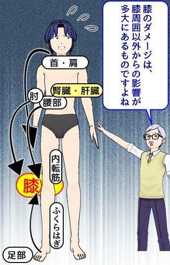 多くの膝の痛みの原因たち.jpg