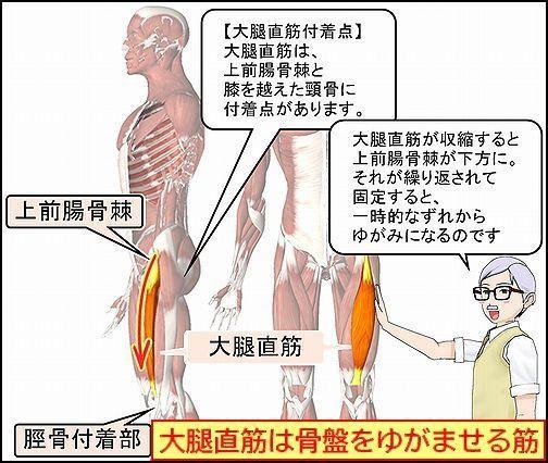 大腿直筋は骨盤をゆがませる筋.jpg
