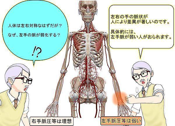左手脈が弱化.jpg