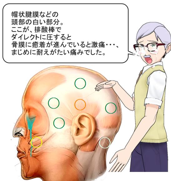 帽状腱膜等頭部の白い部分は激痛.png