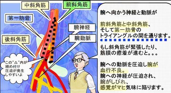 斜角筋を右肩から見た図シンプル2.jpg