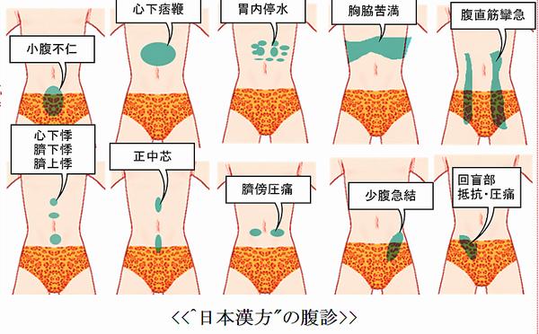 日本漢方の腹診.png
