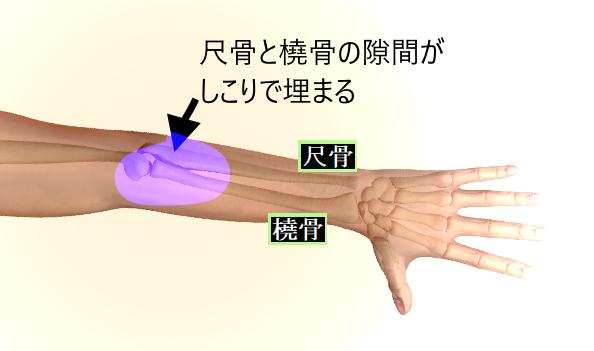 橈骨と尺骨の間がしこりで埋まる.png