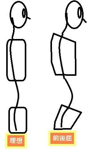 理想の脊椎の湾曲と前後屈が大きい場合.jpg