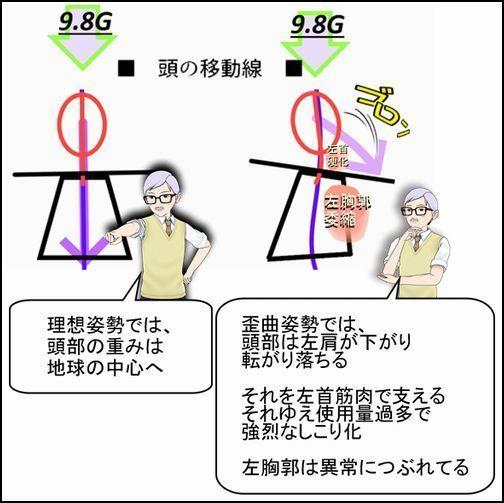 理想姿勢と歪曲姿勢の上半身フォルムからわかる異常2.jpg