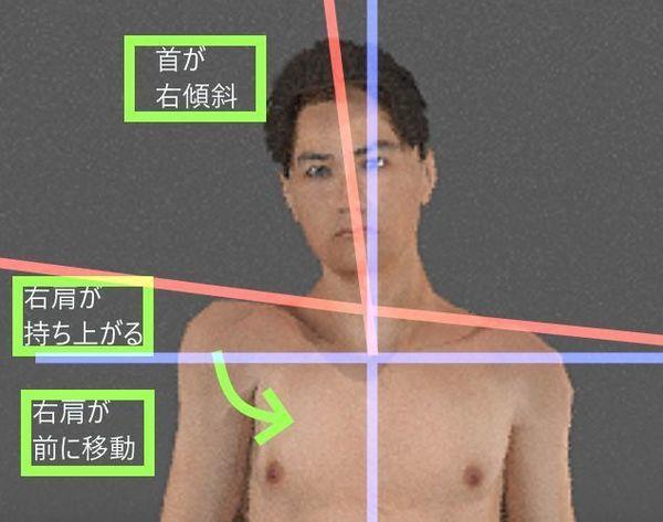 肩の水平、首の垂直、腕の前巻き込み.jpg