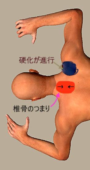 肩の硬化が進行.png