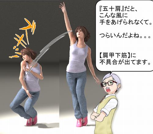 肩甲下筋に問題ある人の場合.png