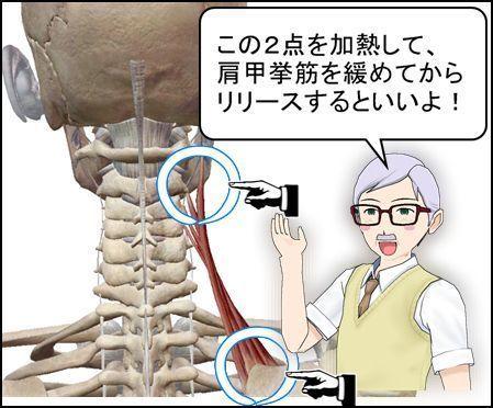 肩甲挙筋 肩こりの筋肉加熱場所.jpg