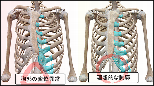 胸郭のパターンイメージ.png