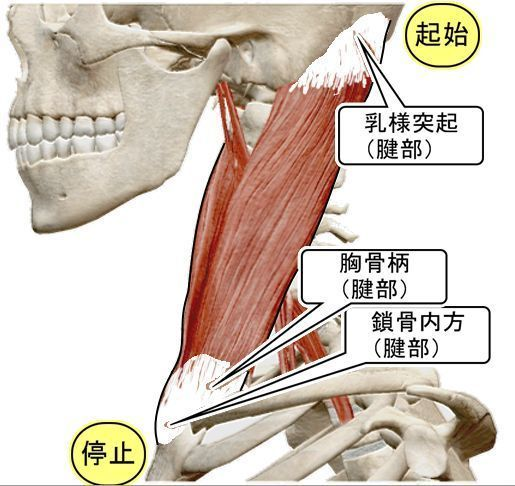 胸鎖乳突筋の起始と停止.jpg