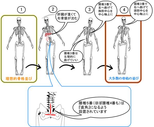 脊椎のゆがむ流れ.png