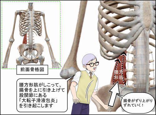 腰方形筋による腸骨のずりあがりで大転子滑液包炎に.jpg