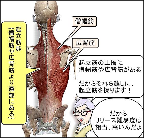 起立筋は僧帽筋や広背筋より深部です.png