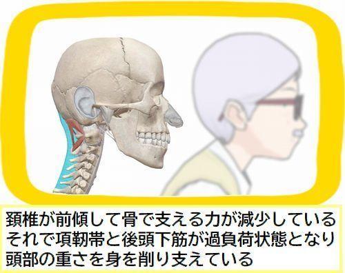 頭と首のポジション悪い.jpg