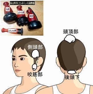 頭部をベン石温熱器でリリース.jpg