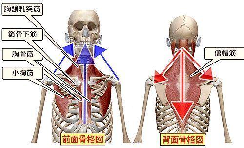 頭部を前後の体幹から支えるツール.jpg