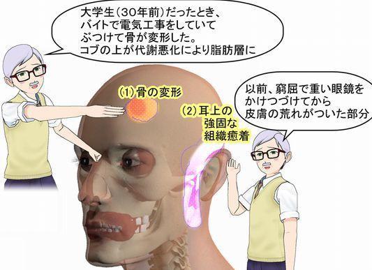 顔のダメージがスモールサイズのベン石温熱器でどうなるか?.jpg